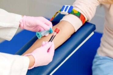 Varför är det viktigt att fasta innan blodprov?