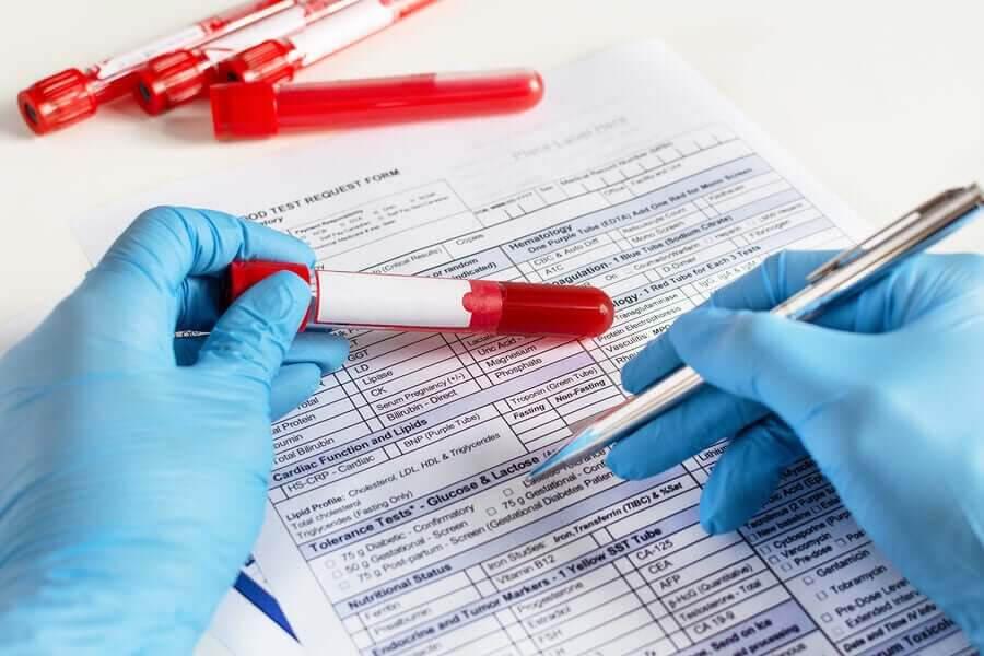 fasta innan blodprov: blodprovstagning