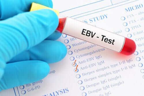 mononukleos smittsamt: blodprov för EBV