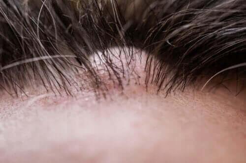 Vad är dermatofibrom, eller godartade bindvävsknutor