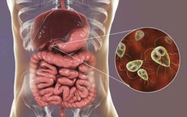Symptom och behandling av giardiasis