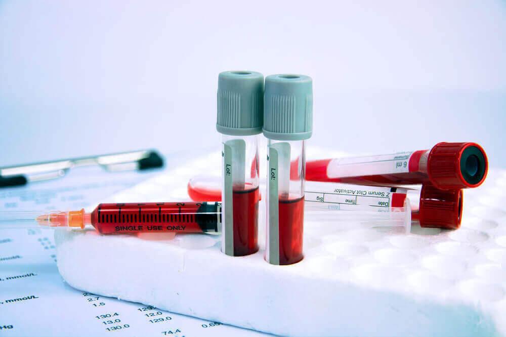 du är anemisk eller inte: blodprov