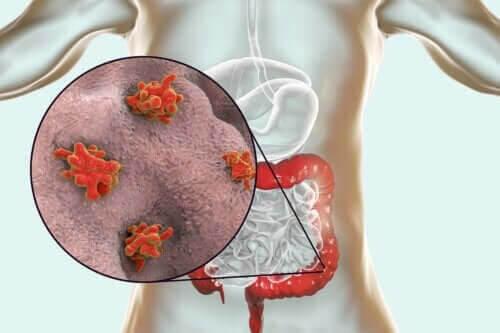 Sjukdomar orsakade av protozoer