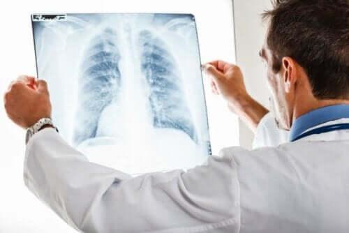 Doktor tittar på röntgenbild av lunga.