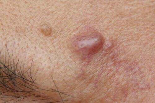 Om hudceller inte stöts bort som de ska, kan en epidermal cysta utvecklas.