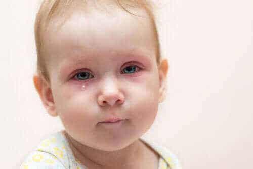 Ögoninflammation hos barn: vad kan du göra?