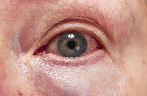 Diagnos och behandling av inflammation av druvhinnan