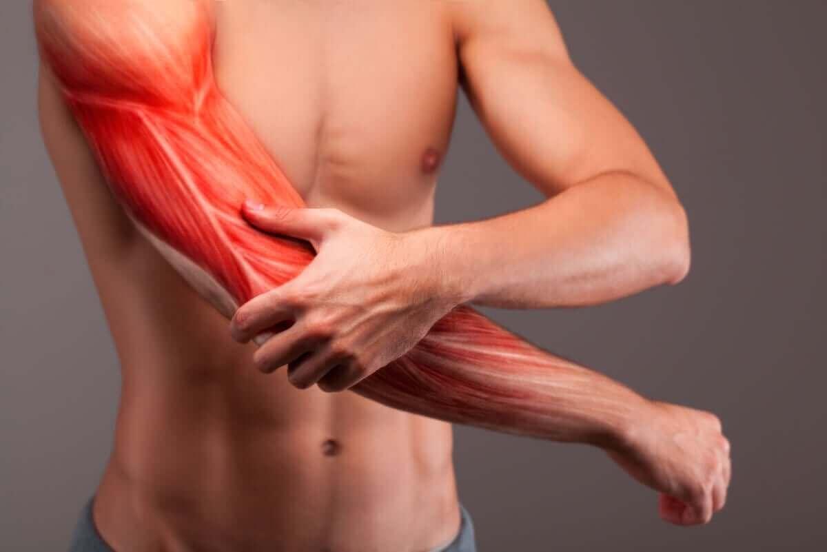 man med illustration av muskler i armen