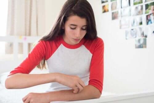 kvinna med Kliande hud på armen