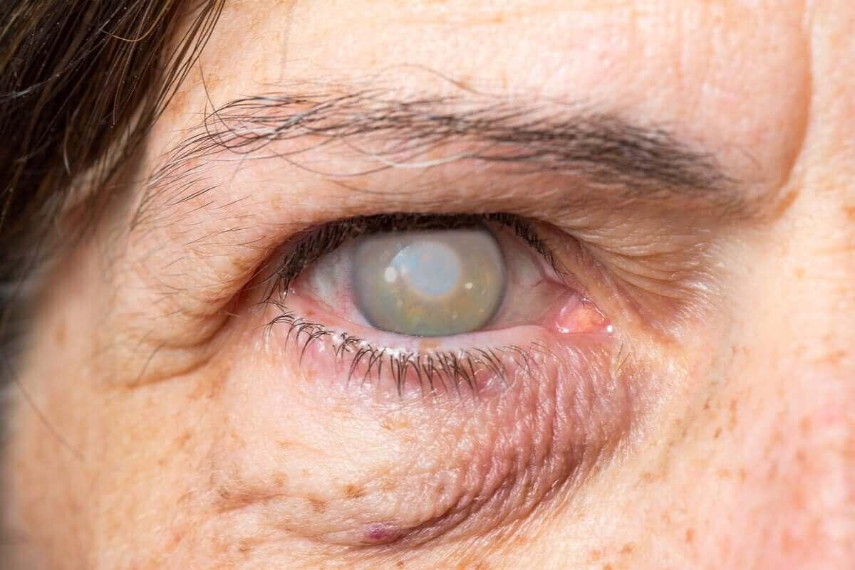 person som har grå hinna över ögonen