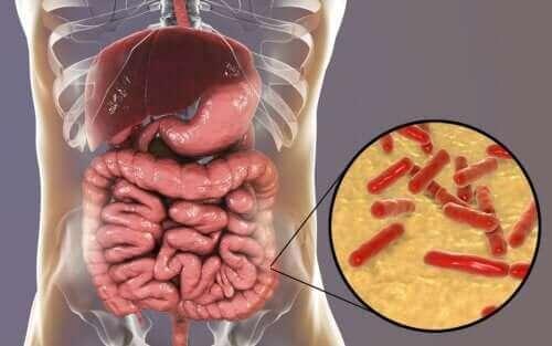 Hur man vet om tarmens mikrobiom är skadat