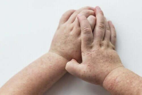 scharlakansfeber är smittsamt: barnhänder med utslag