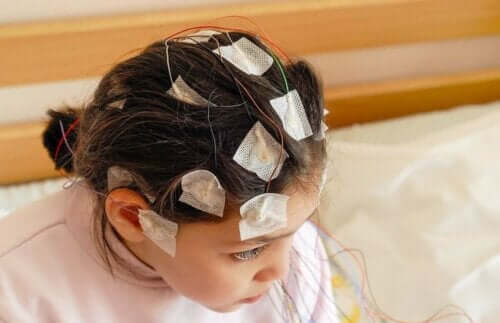 Epilepsi hos barn: barn med elektroder på huvudet
