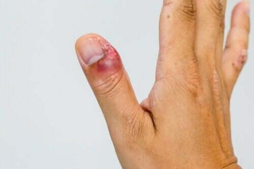 infektioner i nagelbanden på tummen