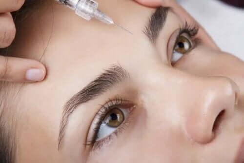 Kvinna får syrainjektion i pannan.