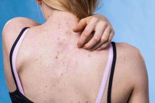 Olika typer av hudutslag och orsakerna bakom