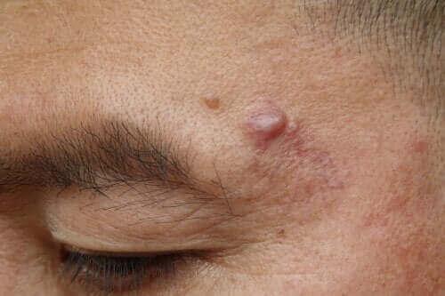 Epidermala cystor: orsaker och möjliga behandlingar