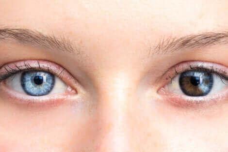 kvinna med olikfärgade ögon