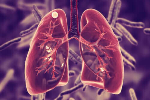 Tuberkulos i lungorna - vad är det?