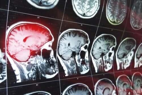 vad är konfabulationer: bilder på hjärna