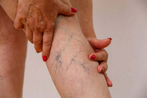 Lär dig mer om åderbråck - symptom och behandling