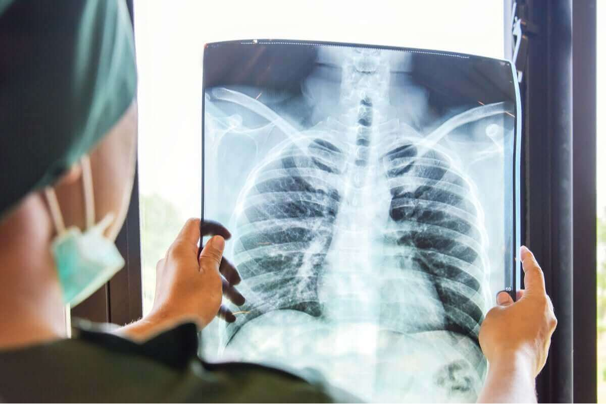 röntgenbild av lungor
