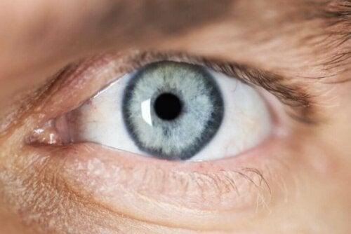 Orsaker till mios (pupillförträngning)