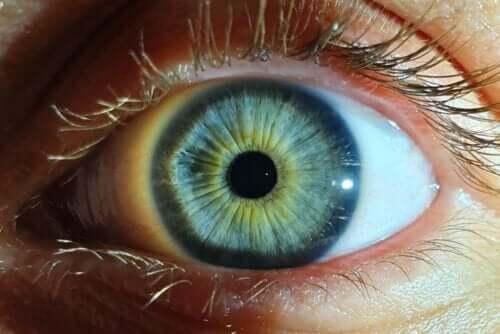 Uppspärrat öga med gul ring runt pupillen.