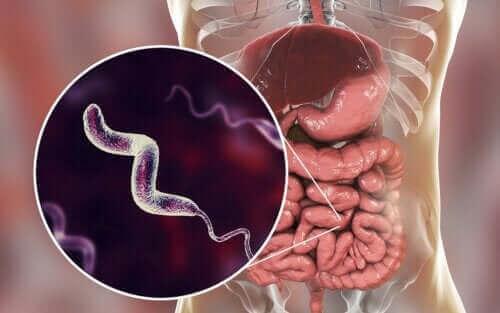 Symtom på campylobacterinfektion