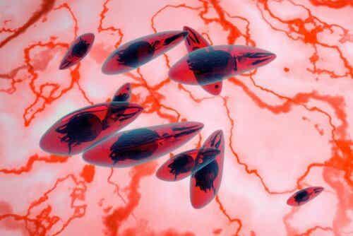 Toxoplasma är en parasit som orsakar toxoplasmos i alla dess typer, inklusive den okulära.