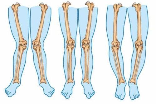 Olika typer av ben.