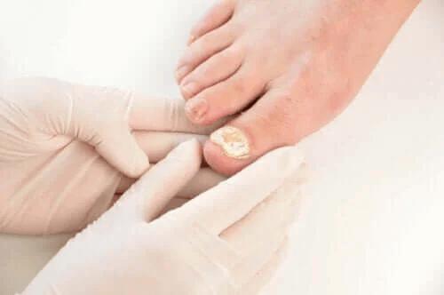 Sju sätt att förebygga nagelsvampinfektioner