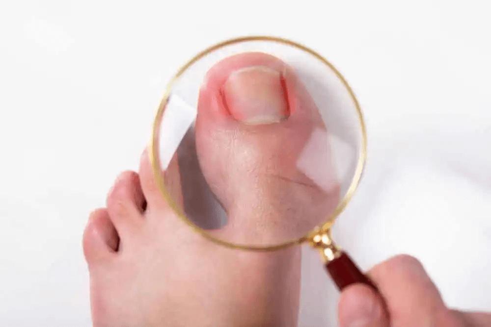 förebygga nagelsvampinfektioner: förstoringsglas tittar närmare på stortå