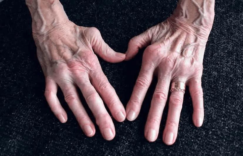 händer med artrit