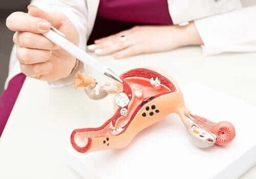 Graviditetskomplikationen cervixinsufficiens: symptom
