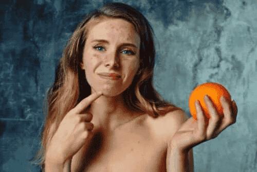 Allergi mot citrus: Symptom, behandling och rekommendationer
