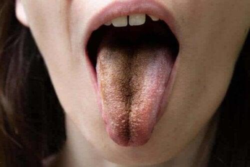 Svart, hårig tunga: Orsaker, symptom och åtgärdande tips